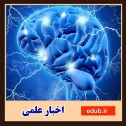 طراحی دستگاه تصویربرداری از مغز با روش جدید