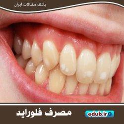 فلوراید بیش از حد موجب پوسیدگی مینای دندان میشود