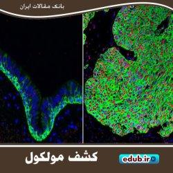 کشف یک مولکول جدید برای سلامت ریهها